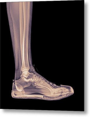 Trainers X-ray Metal Print by Photostock-israel