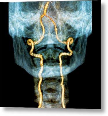 Vertebral Artery Insufficiency Metal Print