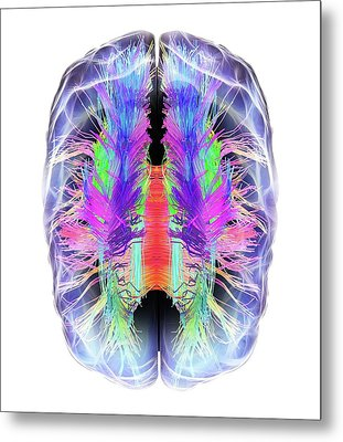 White Matter Fibres And Brain Metal Print by Alfred Pasieka