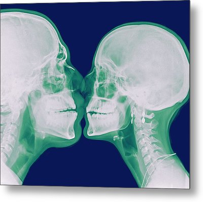 X-ray Kissing Metal Print