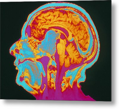 Coloured Mri Brain Scan Of A Pituitary Tumour Metal Print by Mehau Kulyk