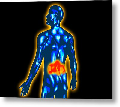 Lower Back Pain Metal Print by Christian Darkin