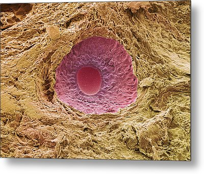 Ovarian Follicle, Sem Metal Print by Steve Gschmeissner