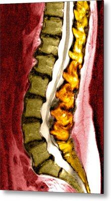 Spine Degeneration, Mri Scan Metal Print by Du Cane Medical Imaging Ltd