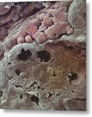 Colon Cancer, Sem Metal Print by Steve Gschmeissner