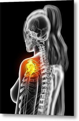 Shoulder Pain, Conceptual Artwork Metal Print by Sciepro