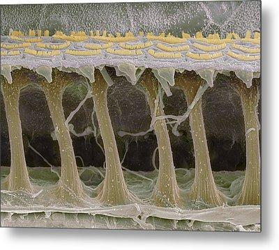 Inner Ear Hair Cells, Sem Metal Print by Steve Gschmeissner