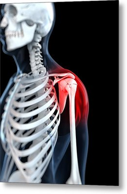 Shoulder Pain, Conceptual Artwork Metal Print by Sciepro