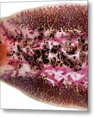 Beef Liver Fluke, Light Micrograph Metal Print by Dr Keith Wheeler