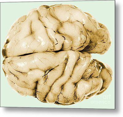 Brain Metal Print by Science Source