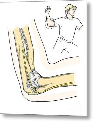 Illustration Of Elbow Ligaments Metal Print by Science Source