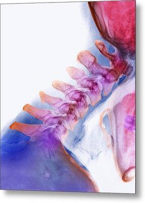 Neck Vertebrae Extended, X-ray Metal Print by