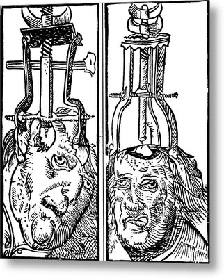 Trepanning 1525 Metal Print by Science Source