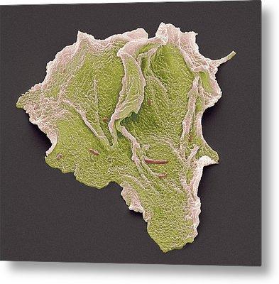 Cheek Squamous Cells, Sem Metal Print by Steve Gschmeissner