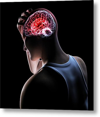 Headache, Conceptual Artwork Metal Print by Sciepro