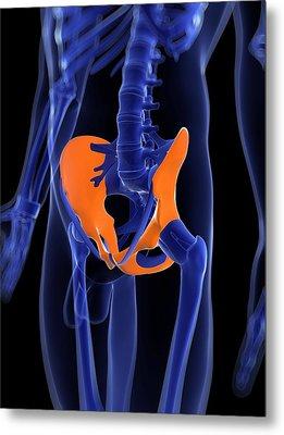 Hip Bones, Artwork Metal Print by Sciepro