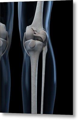 Knee Anatomy, Artwork Metal Print by Sciepro