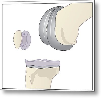 Knee Replacement, Artwork Metal Print by Peter Gardiner