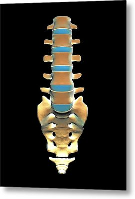 Lumbar Spine And Sacrum, Computer Artwork Metal Print by Pasieka