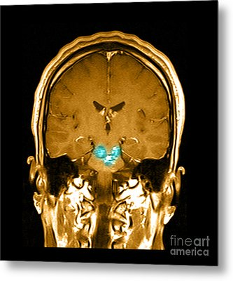 Mri Brainstem Cavernous Malformations Metal Print by Medical Body Scans