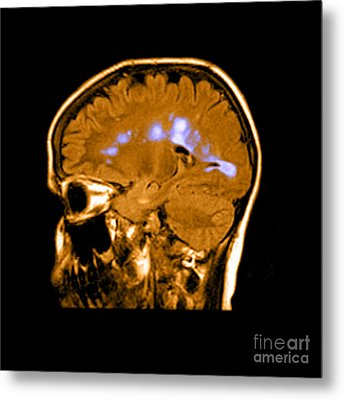 Mri Of Multiple Sclerosis Metal Print by Medical Body Scans