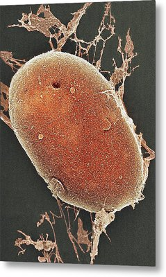 Cell Nucleus, Sem Metal Print by