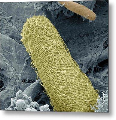 Ciliate Protozoan, Sem Metal Print by Steve Gschmeissner
