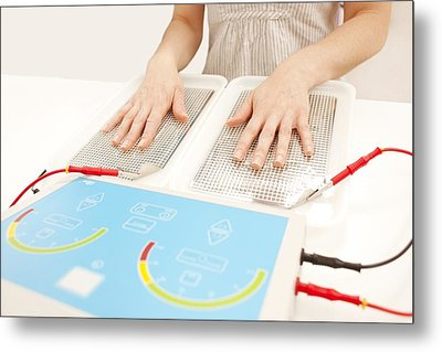 Iontophoresis For Excess Sweating Metal Print by