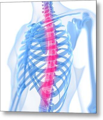 Back Pain, Conceptual Artwork Metal Print by Sciepro