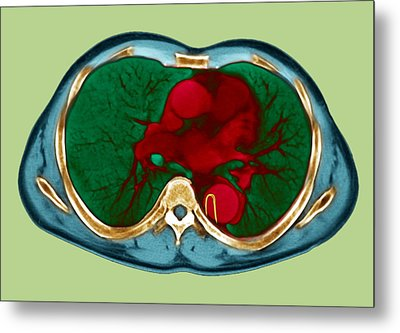 Aortic Dissection, Ct Scan Metal Print