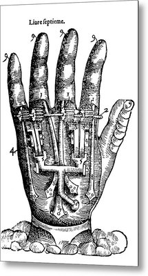 Artificial Hand Designed By Ambroise Metal Print by Science Source