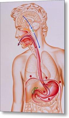 Artwork Of Vomiting Mechanism In Human Body Metal Print by John Bavosi