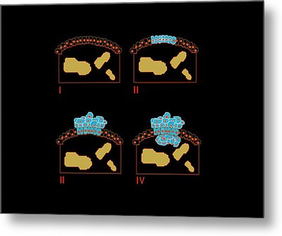 Colon Cancer Stages, Artwork Metal Print