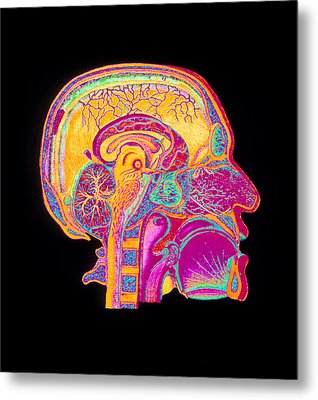 Coloured Illustration Of Sectioned Brain In Head Metal Print by Mehau Kulyk