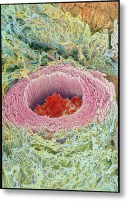 Coloured Sem Of Section Through A Human Arteriole Metal Print by Steve Gschmeissner