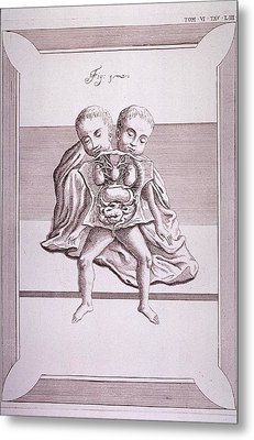 Conjoined Twins With Common Torso Metal Print by Everett