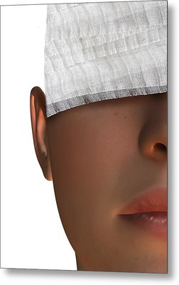 Cosmetic Surgery, Conceptual Artwork Metal Print by Victor Habbick Visions