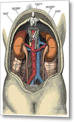 Dissection Of The Abdomen Metal Print by Science Source