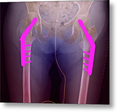 Fixed Double Hip Fracture (image 2 Of 2) Metal Print by Du Cane Medical Imaging Ltd