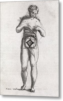 Foetus In Uterus, 17th Century Artwork Metal Print by Middle Temple Library
