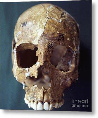 Forensic Evidence, Skull Reconstruction Metal Print