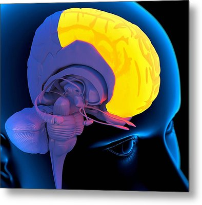 Frontal Lobe In The Brain, Artwork Metal Print by Roger Harris