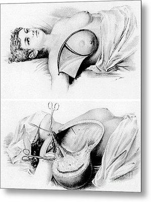Halsted Radical Mastectomy, Incision Metal Print