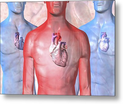 Heart Failure, Artwork Metal Print by David Mack