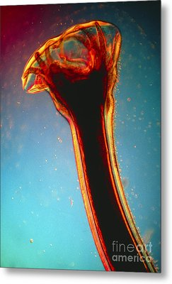 Lm Of Posterior End Of Hookworm Metal Print by Eric Grave