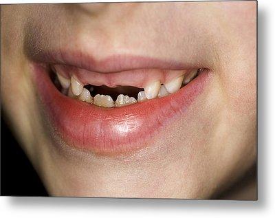 Loss Of Milk Teeth Metal Print by Lawrence Lawry