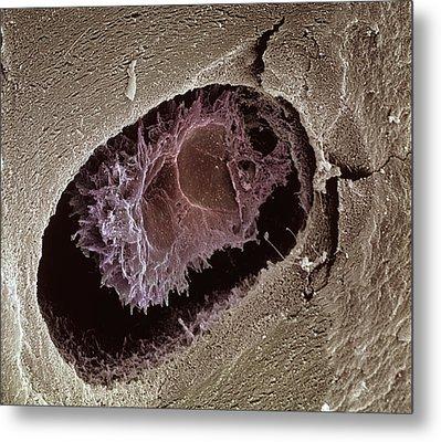 Osteocyte, Sem Metal Print by Steve Gschmeissner