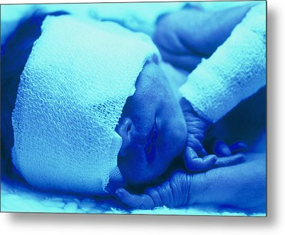 Premature Baby With Jaundice Having Phototherapy Metal Print by Mauro Fermariello