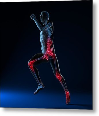 Running Injuries, Conceptual Artwork Metal Print by Sciepro