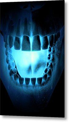 Skull, Teeth And Tongue Metal Print by MedicalRF.com